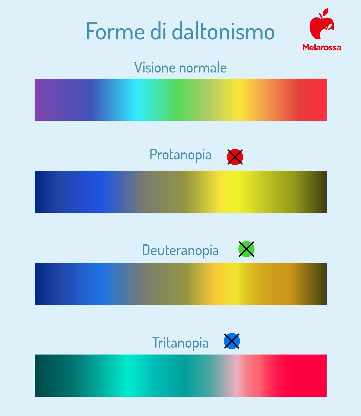 forme di daltonismo