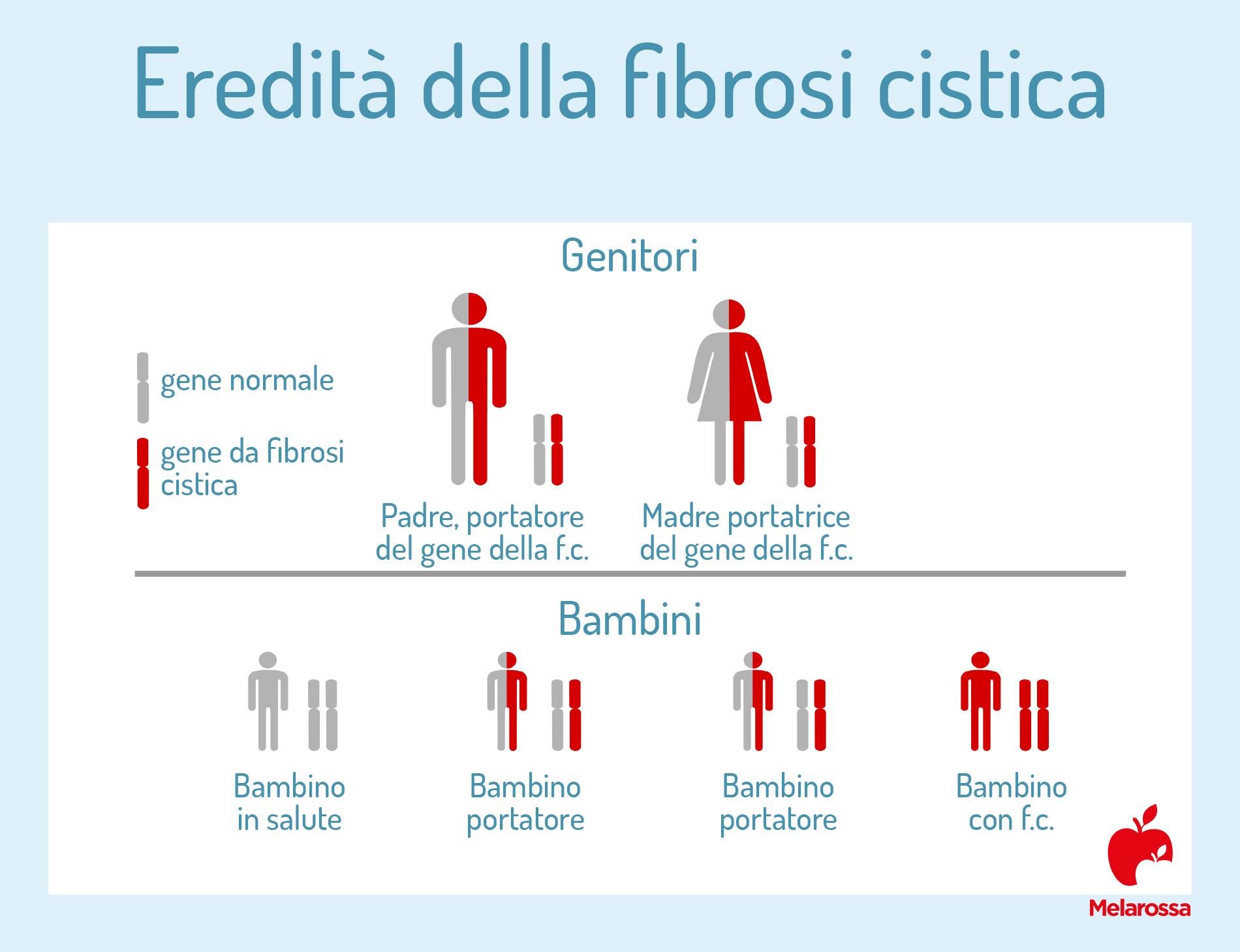 fibrosi cistita: epidemiologia