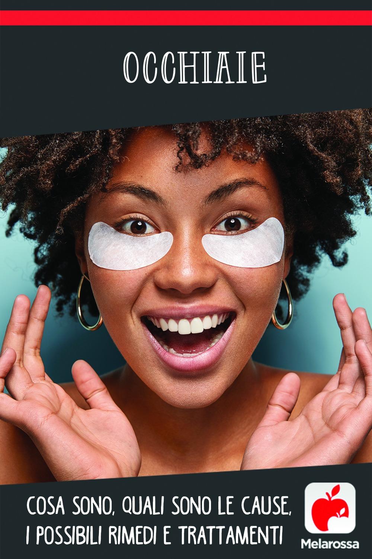 occhiaie: cosa sono, cause, rimedi e trattamenti