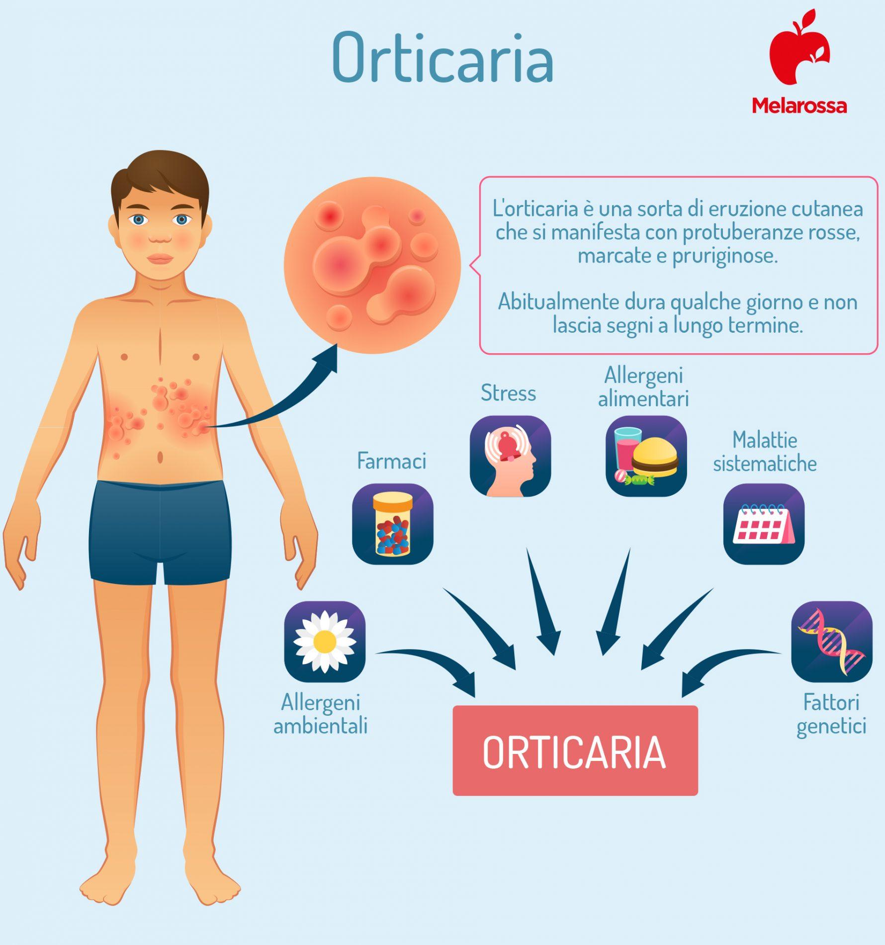orticaria: cause