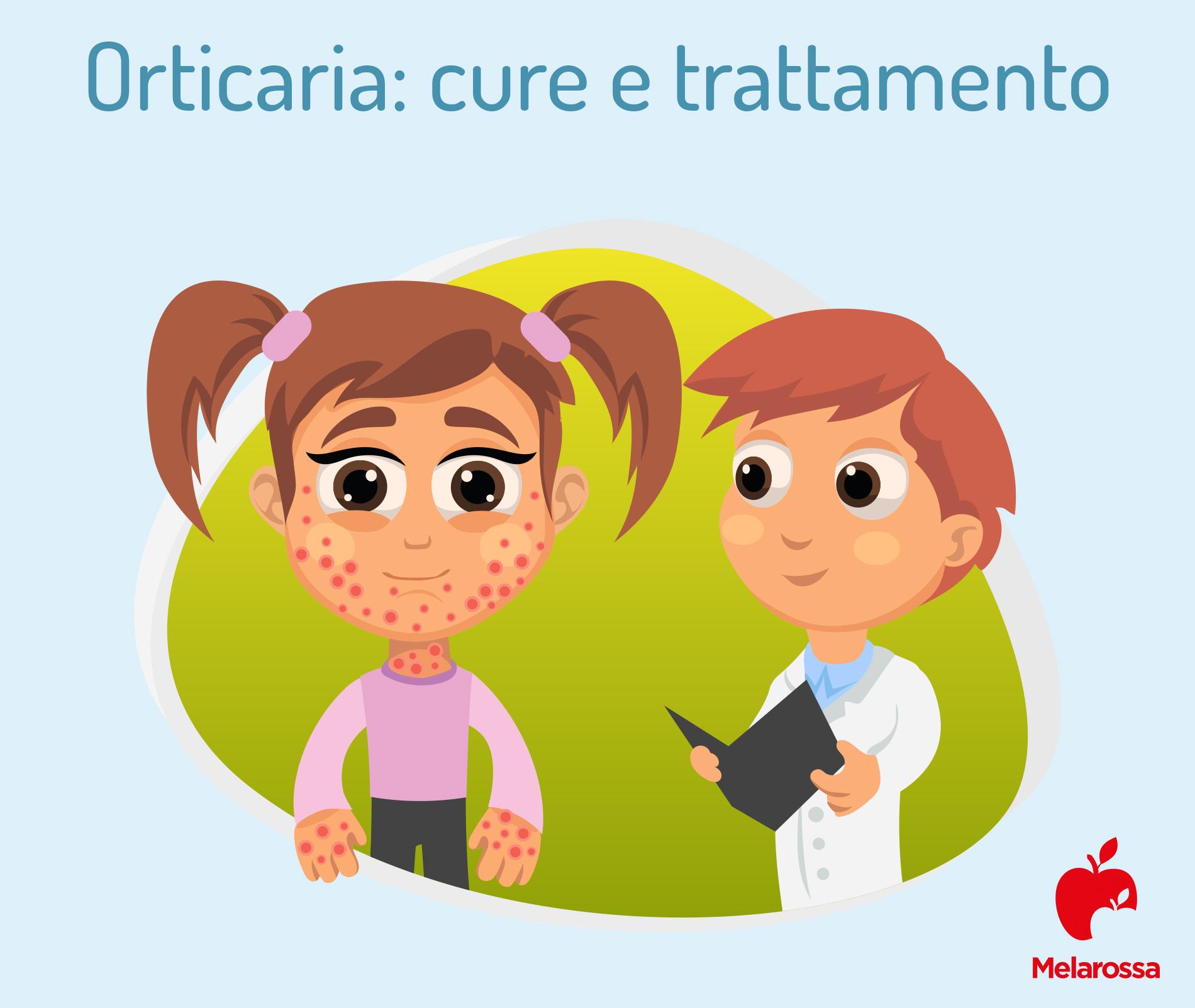 orticaria: diagnosi