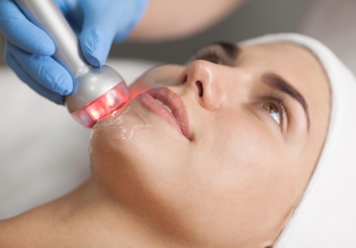 Radiofrequenza viso per un vero e proprio effetto lifting, ridurre le rughe e migliorare la grana della pelle