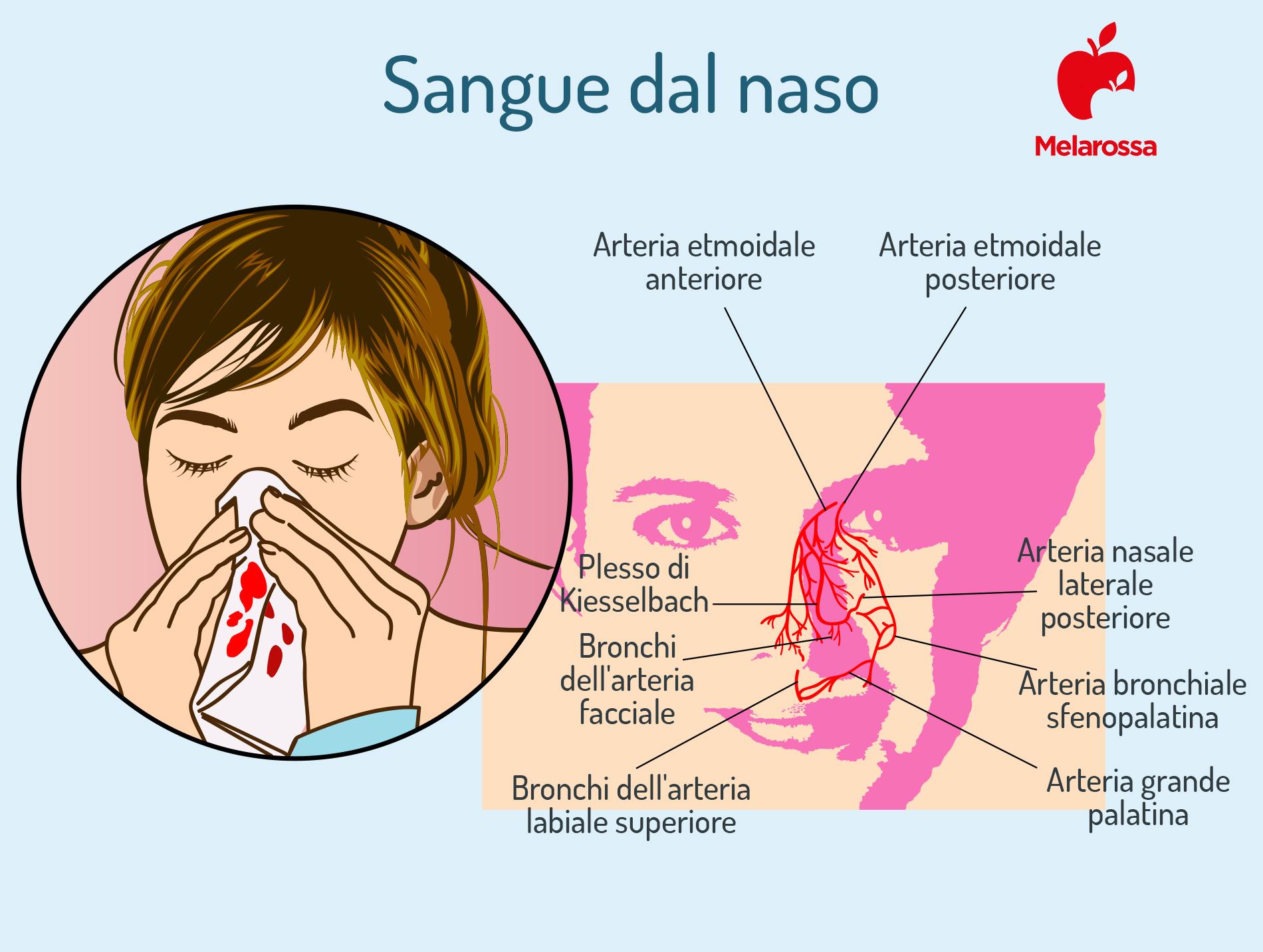 sangue dal naso o epistassi: cos'è