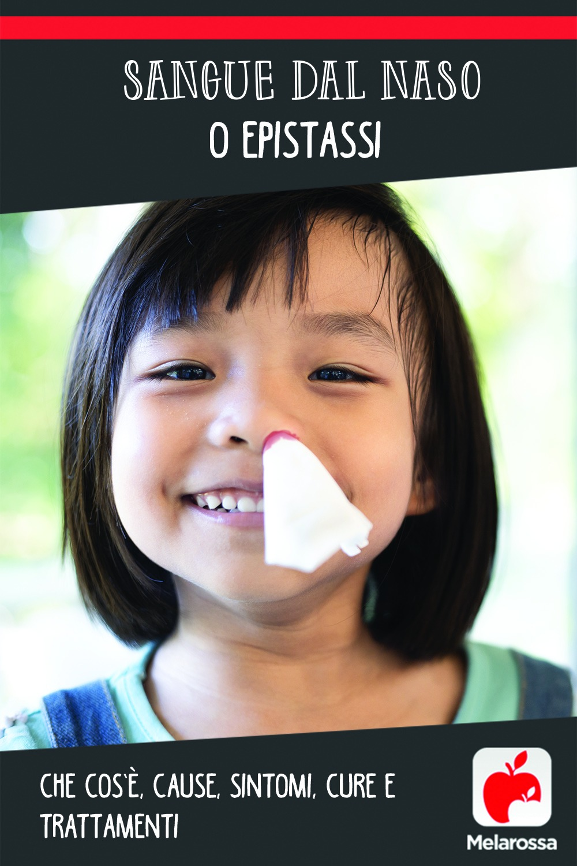 sangue dal naso o epistassi: cos'è, cause, sintomi e cure