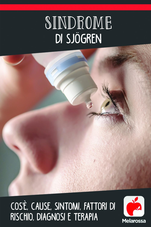Sindrome di Sjoren: cos'è, cause, sintomi e cure