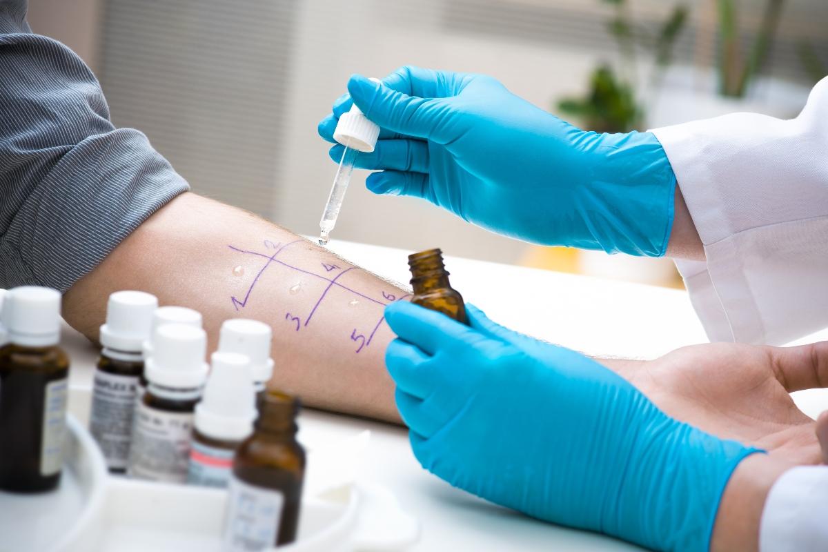 allergia al nichel: test da fare
