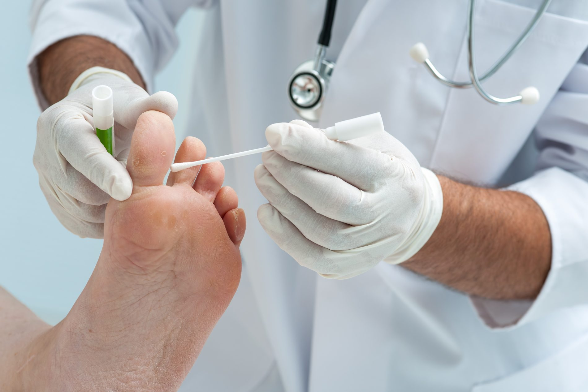 come curare il piede d'atleta