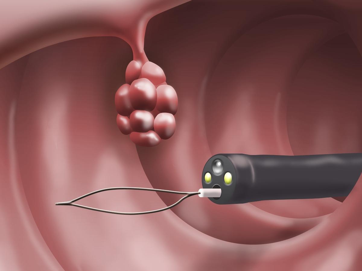 gastroscopia: rimozione polipi