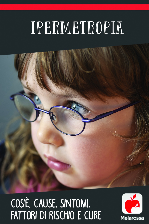 ipermetropia: cos'è, cause, sintomi, fattori di rischio e cure