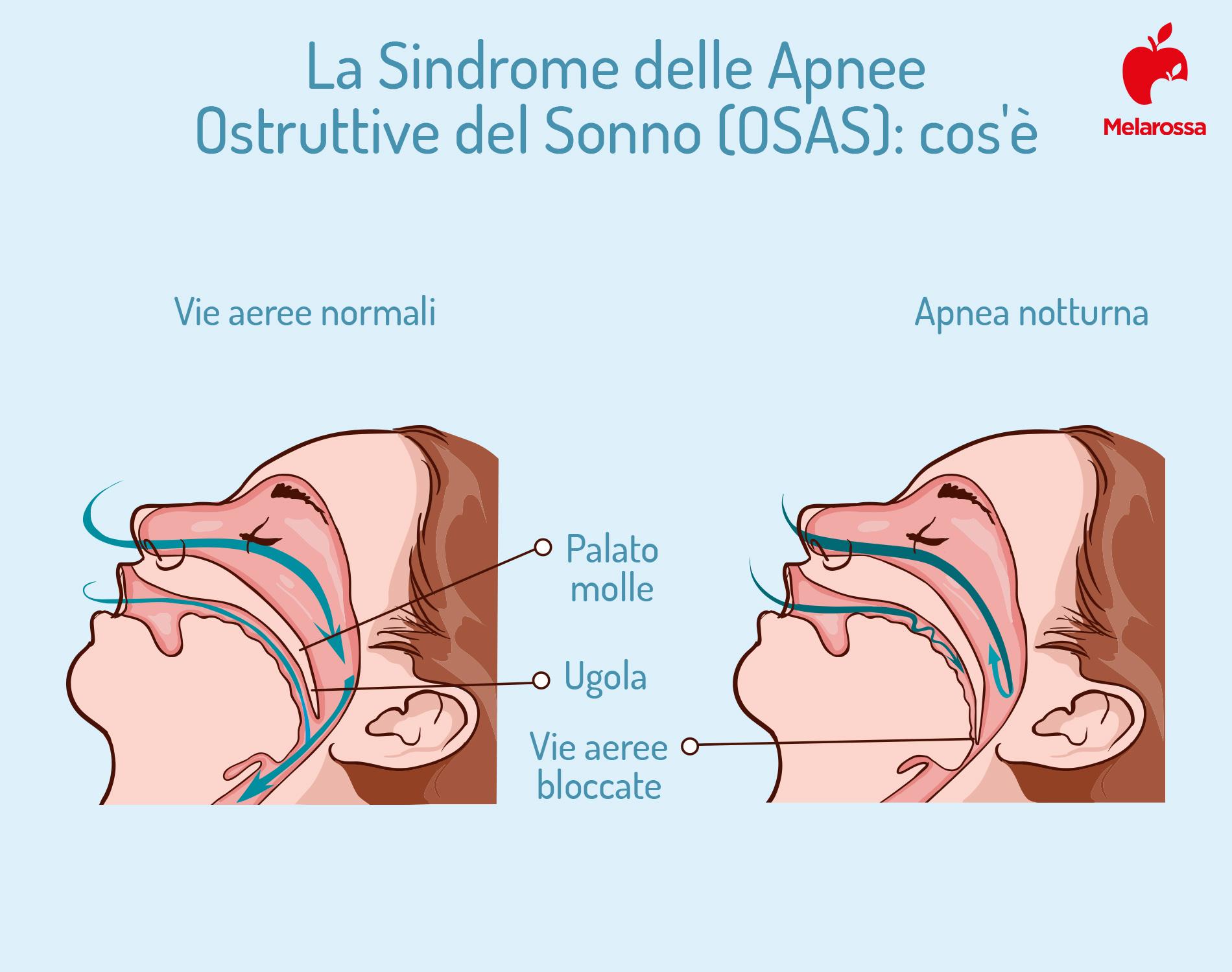 malattie respiratorie: apnea notturna
