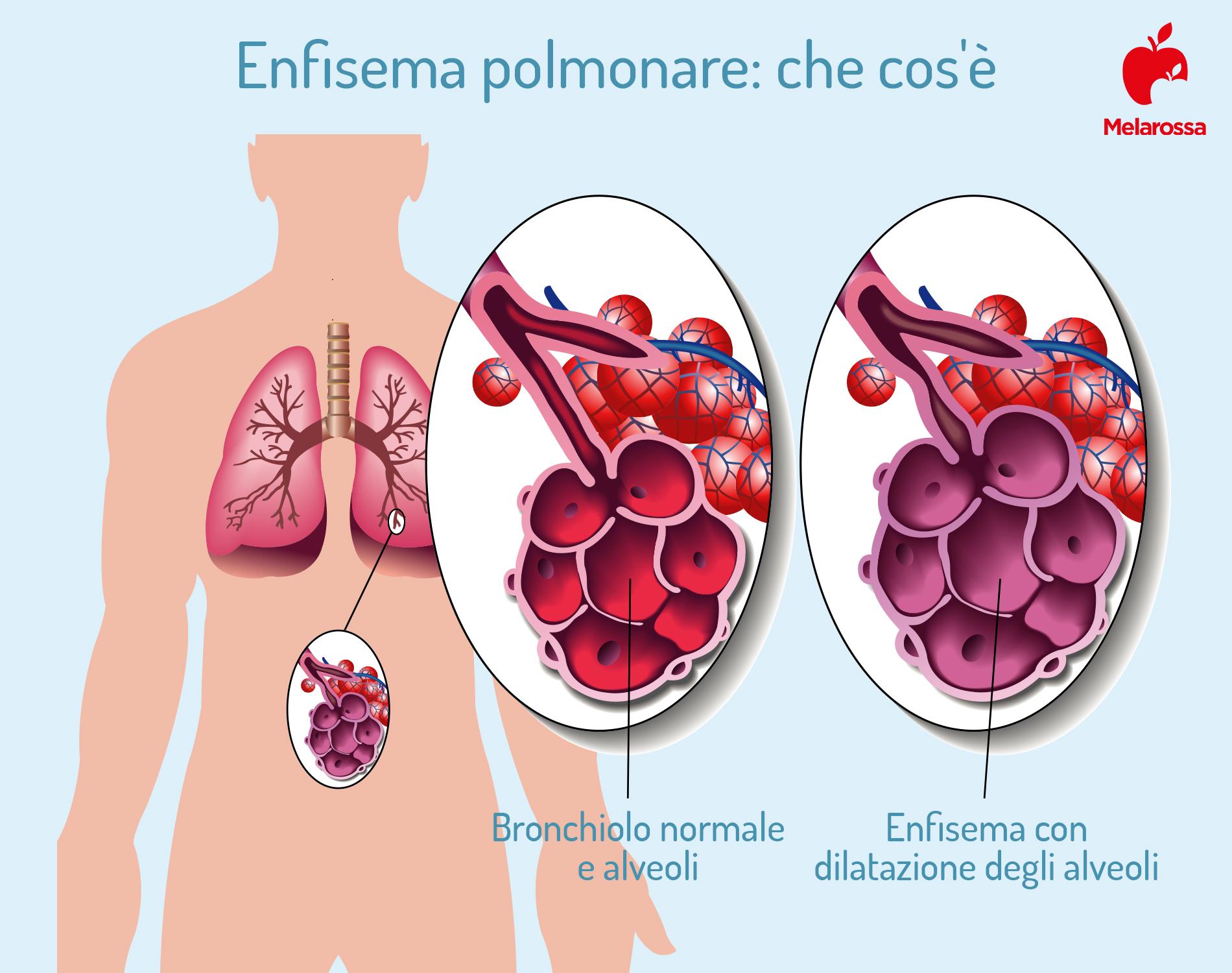malattie respiratorie: enfisema polmonare