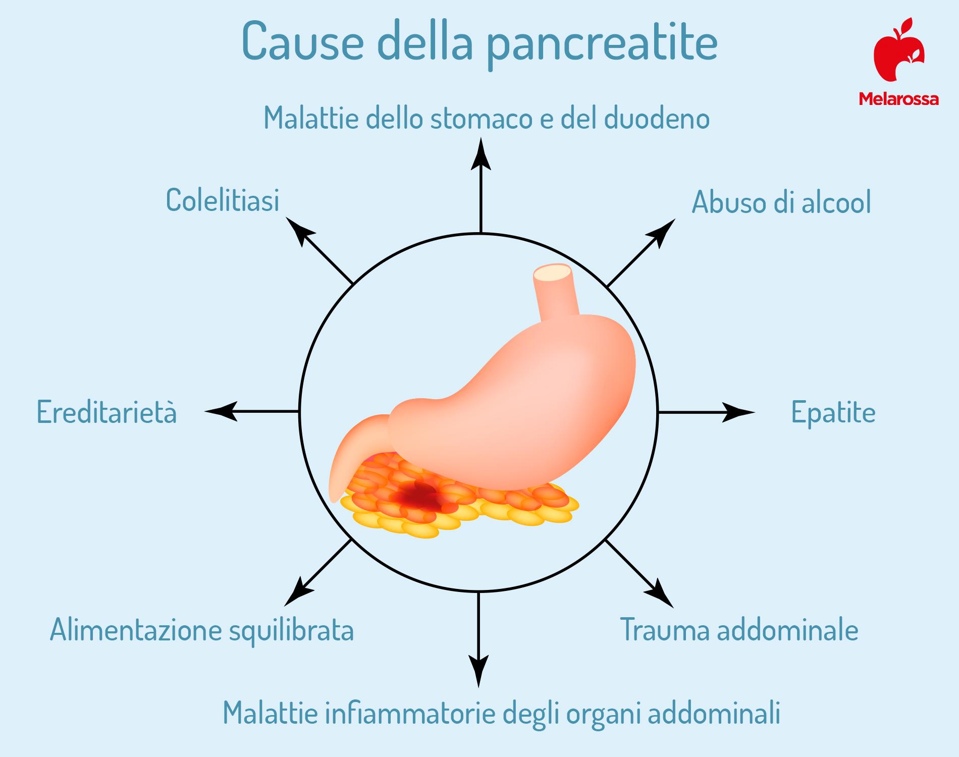 pancreatite cause