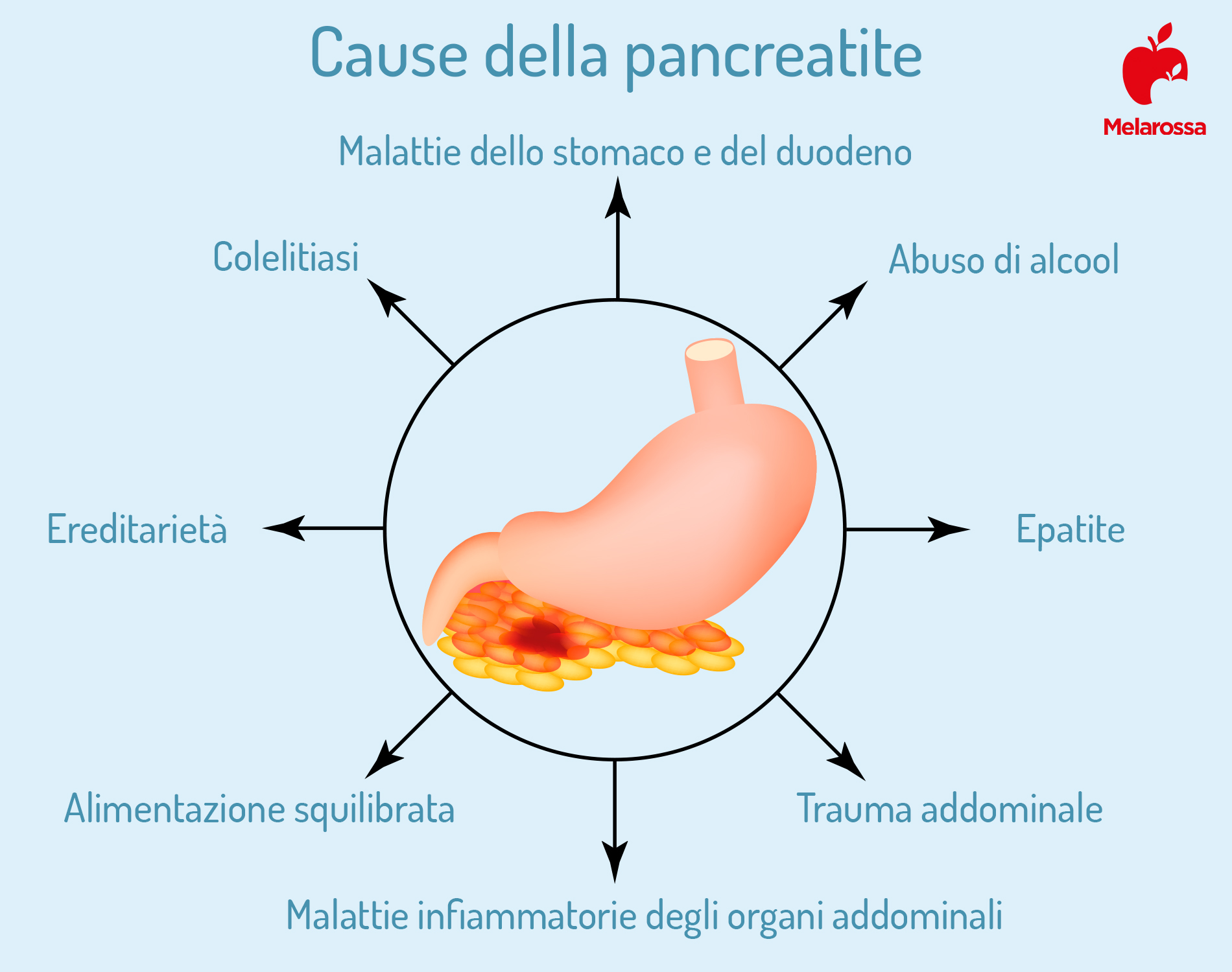 pancreatite cause