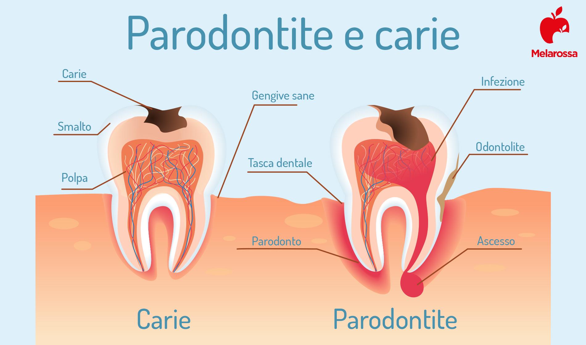 parodontite: cos'è