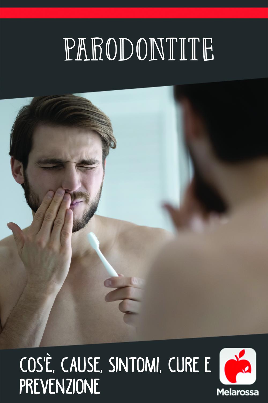 parodontite: cos'è, cause, sintomi e cure