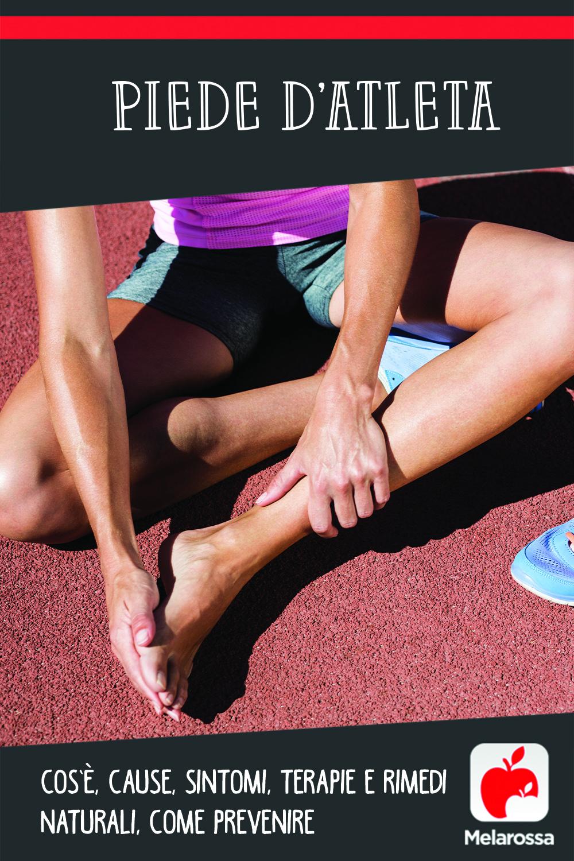 piede d'atleta: cos'è, cause, sintomi e cure