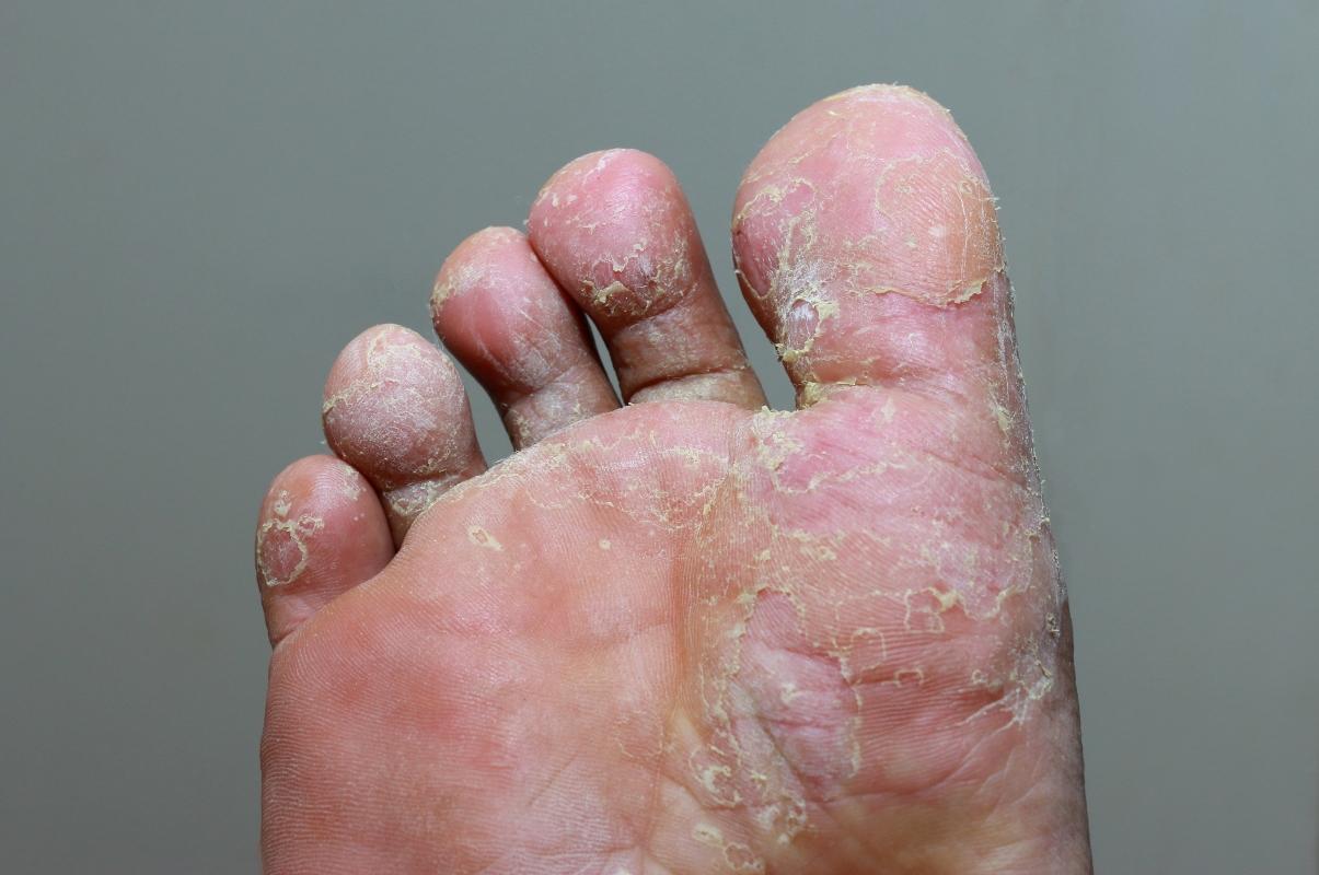 piede d'atleta o tigna del piede: immagine
