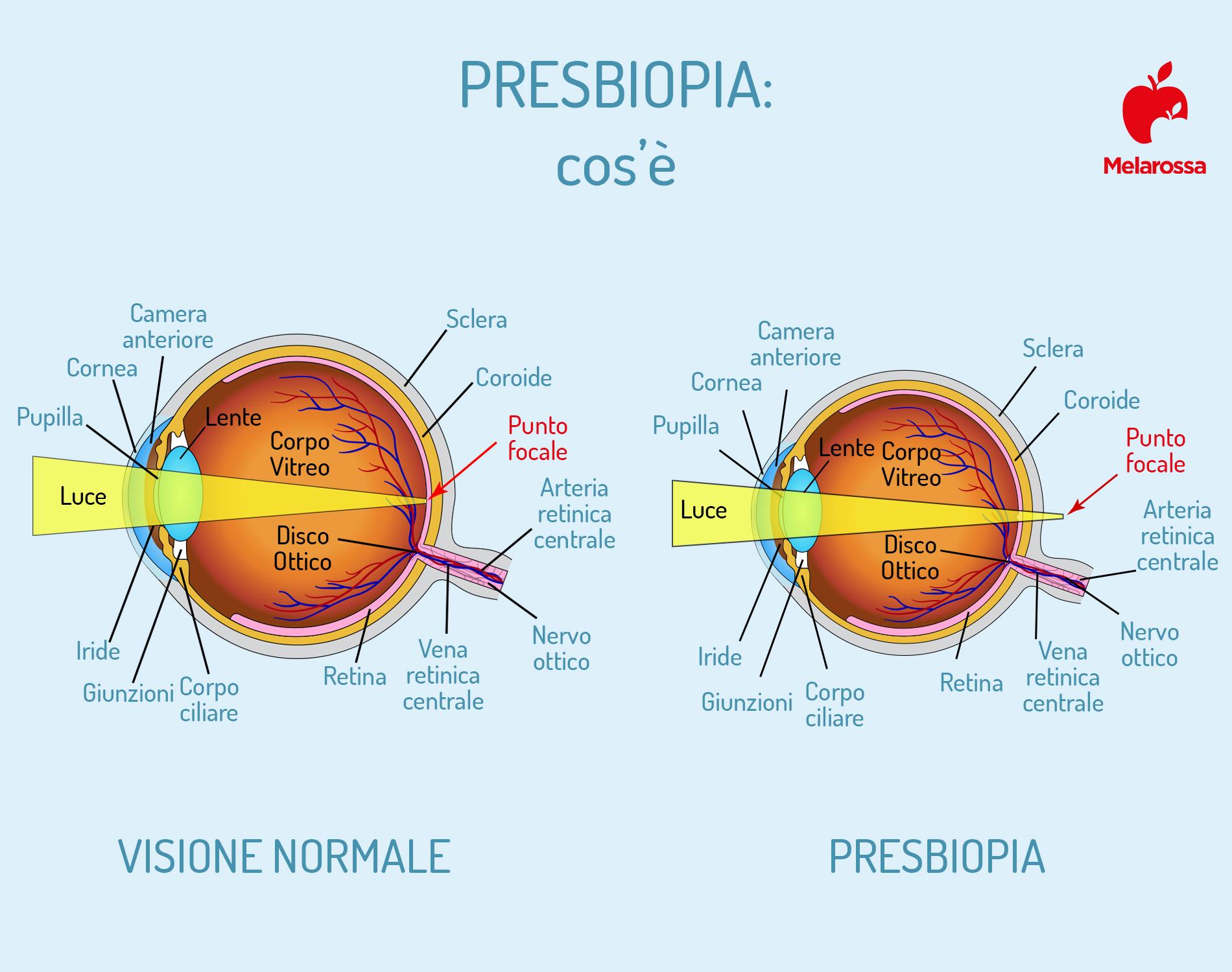 presbiopia: cos'è