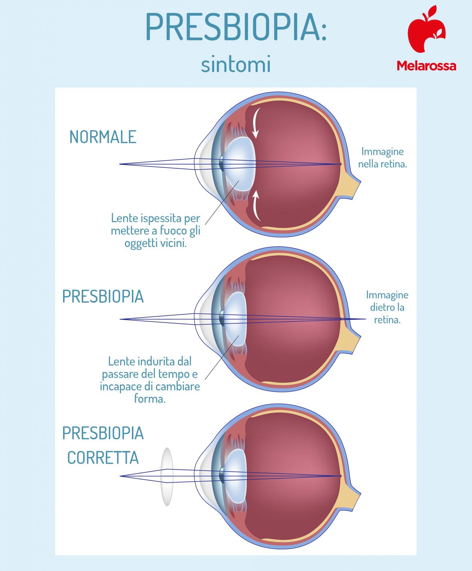 presbiopia: sintomi e come correggere il difetto