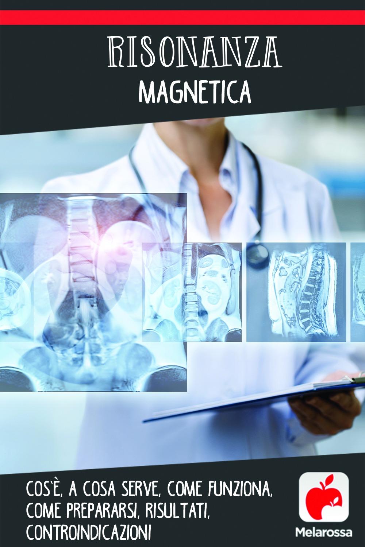 risonanza magnetica: cos'è, a cosa serve, come prepararsi
