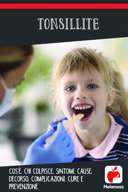 tonsillite: cos'è, cause. sintomi e cure