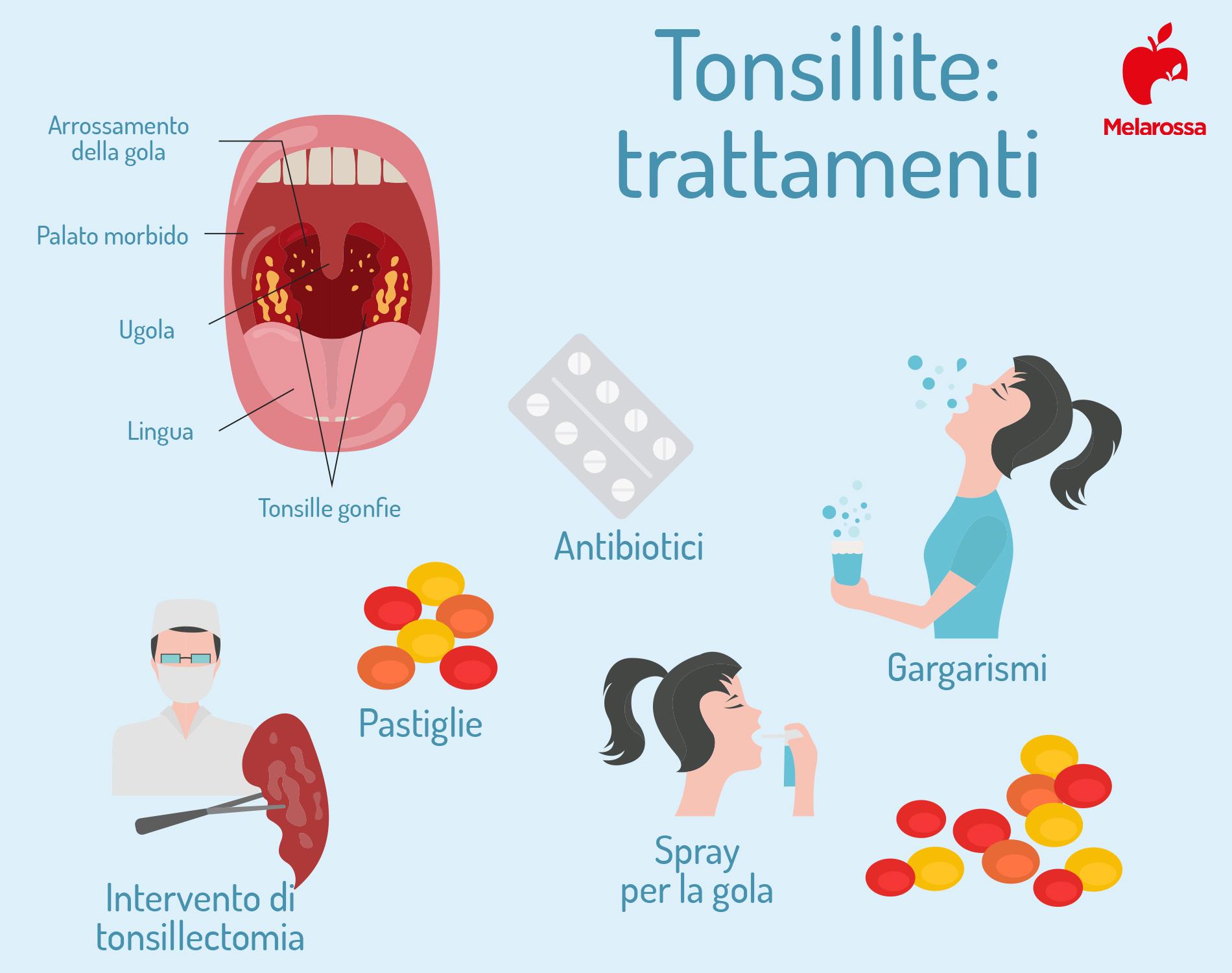 tonsillite: trattamenti