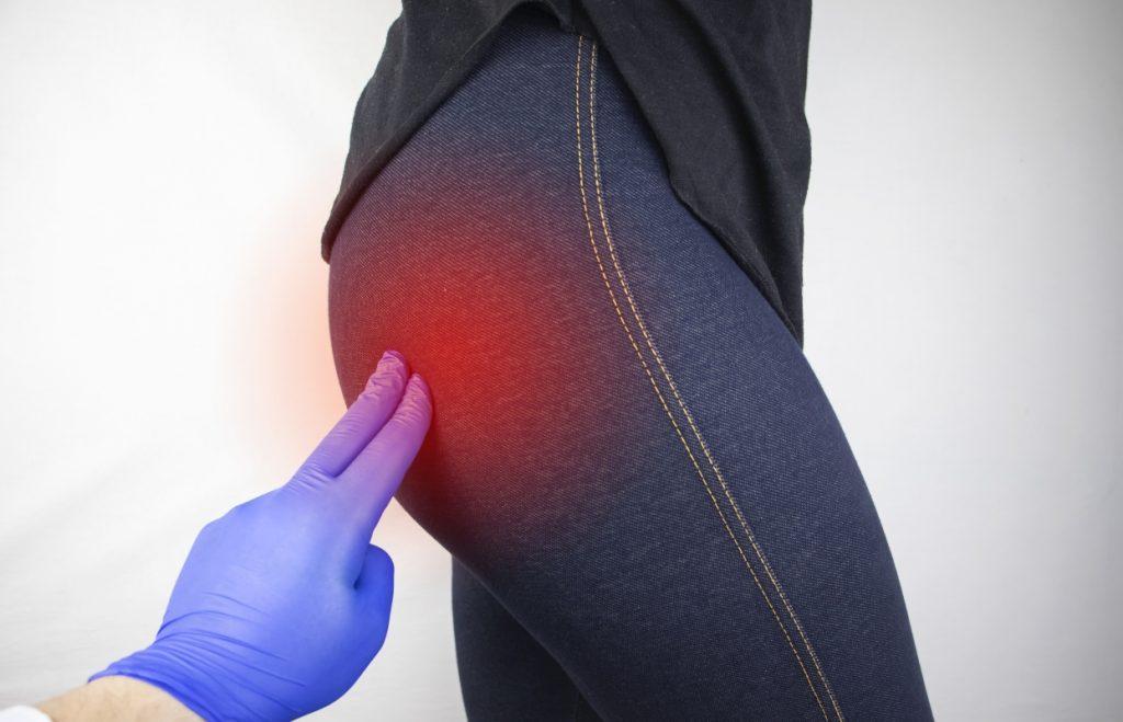 lombosciatalgia: dolore cronico e acuto