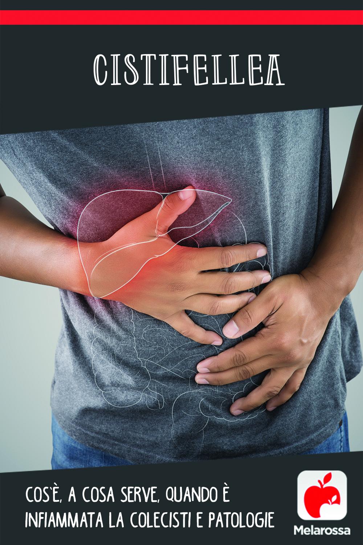 cistifellea: cos'è, a cosa serve, quando è infiammata, patologie
