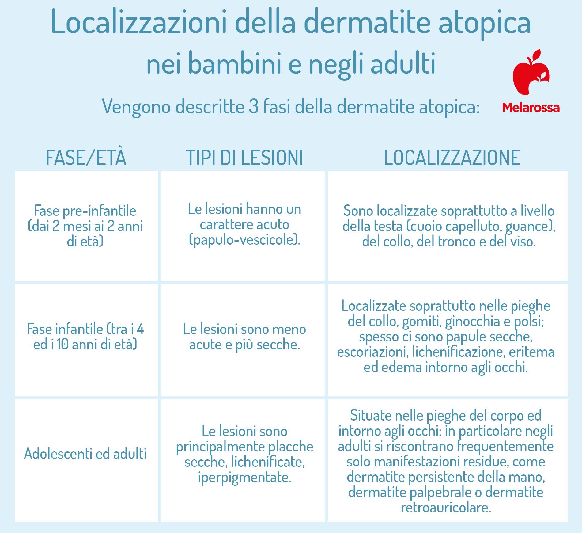 dermatite atopica: localizzazioni