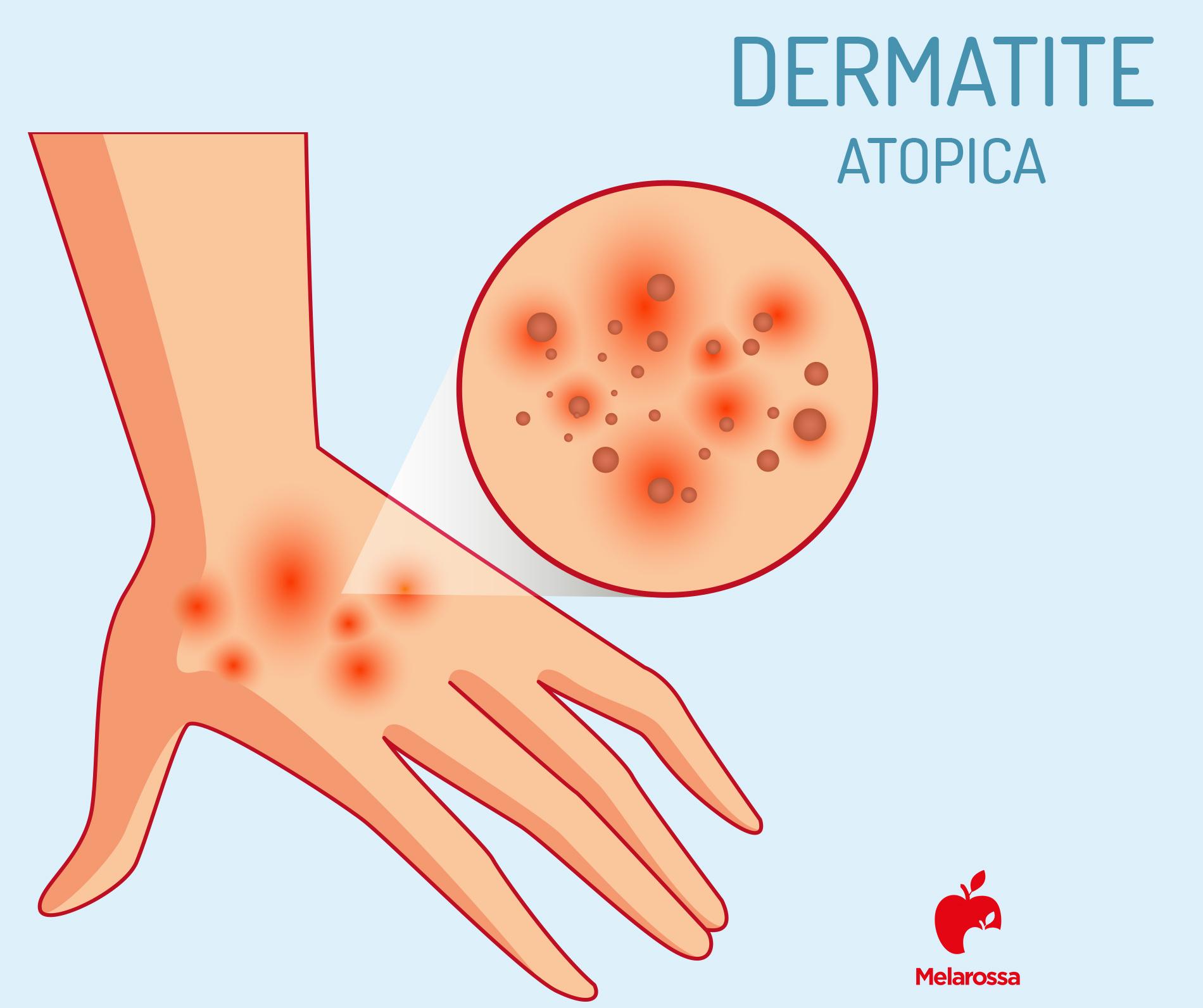 dermatite atopica delle mani