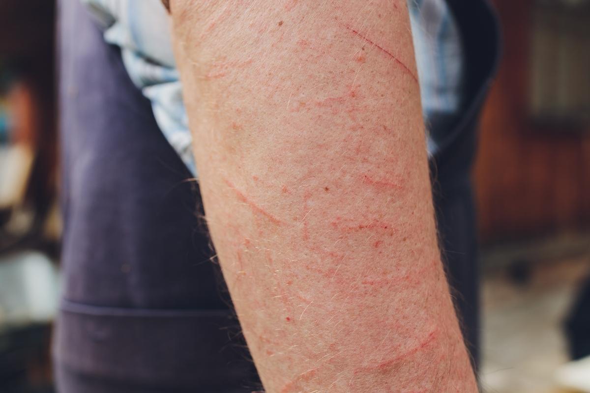 dermatite da contatto: sintomi