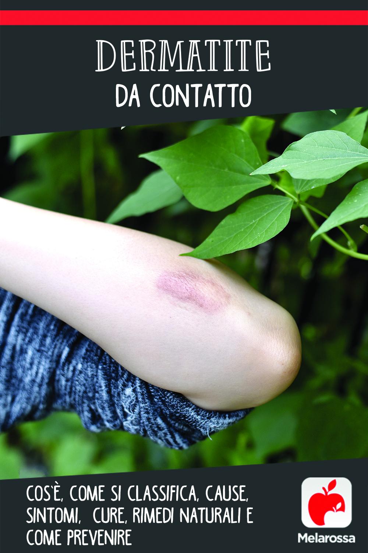 dermatite da contatto: cos'è, cause, sintomi e cure