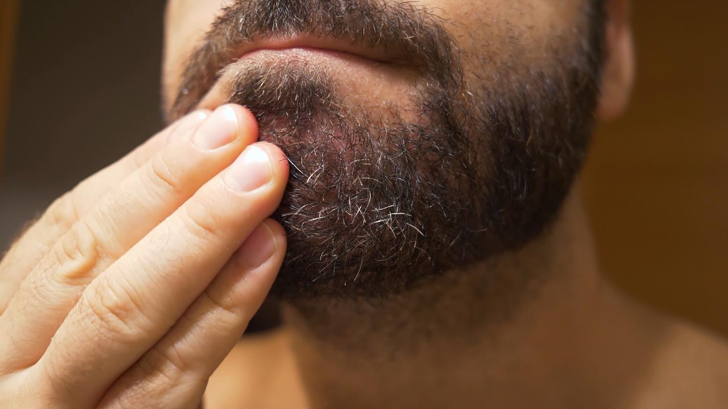 dermatite seborroica: cause