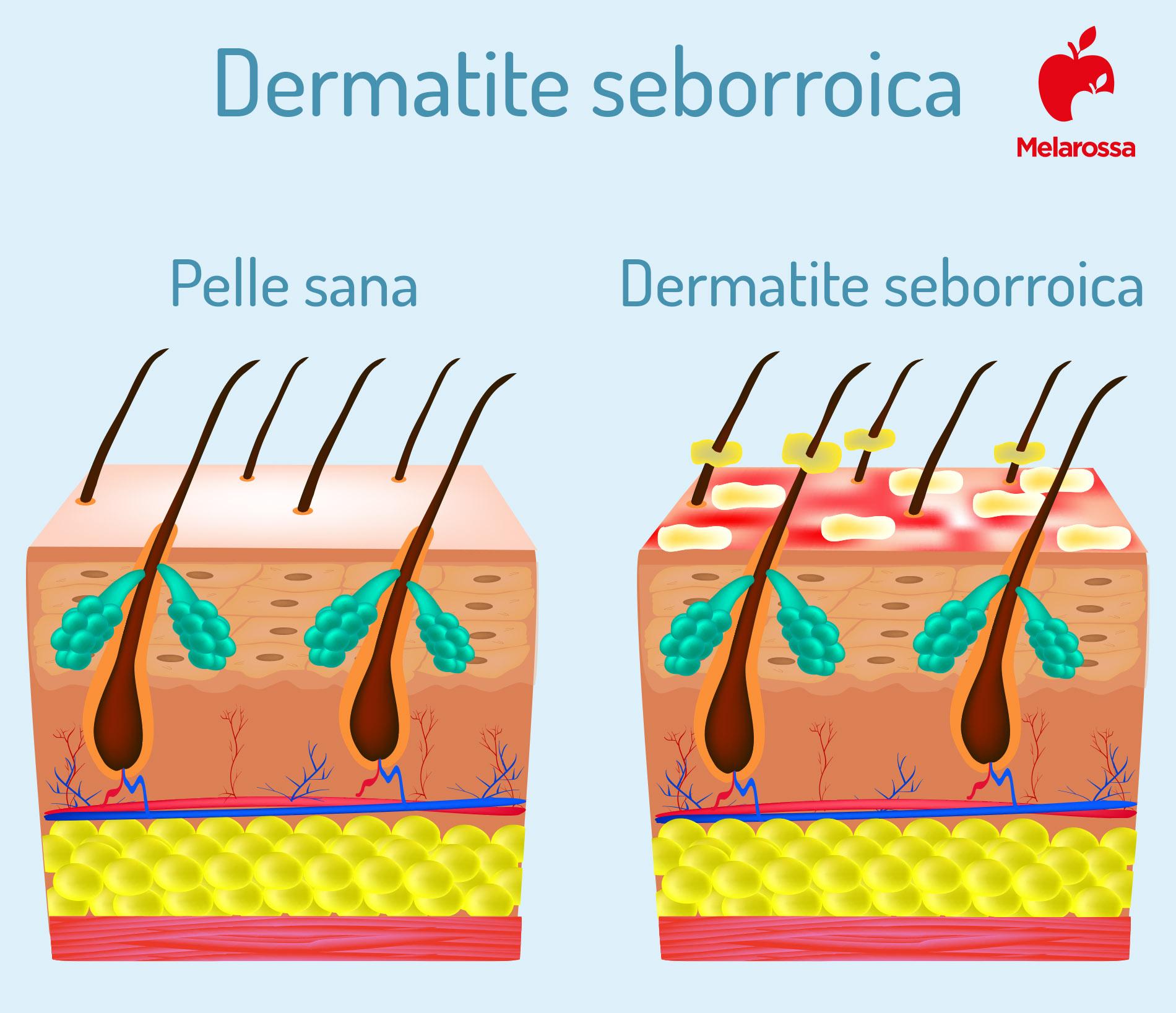 dermatite seborroica: cos'è