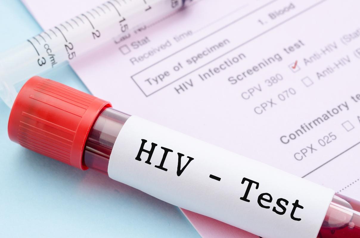 diagnosi AIDS: test HIV