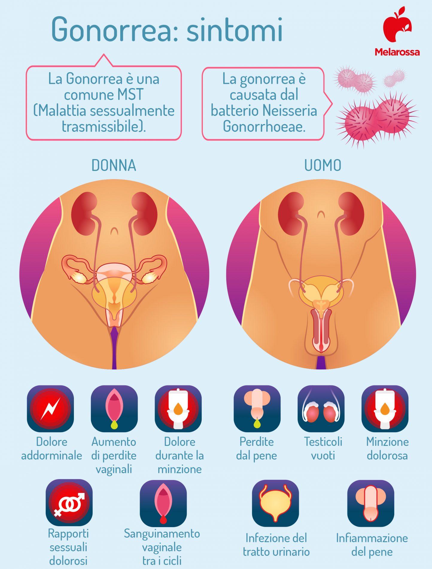 gonorrea sintomi uomo e donna