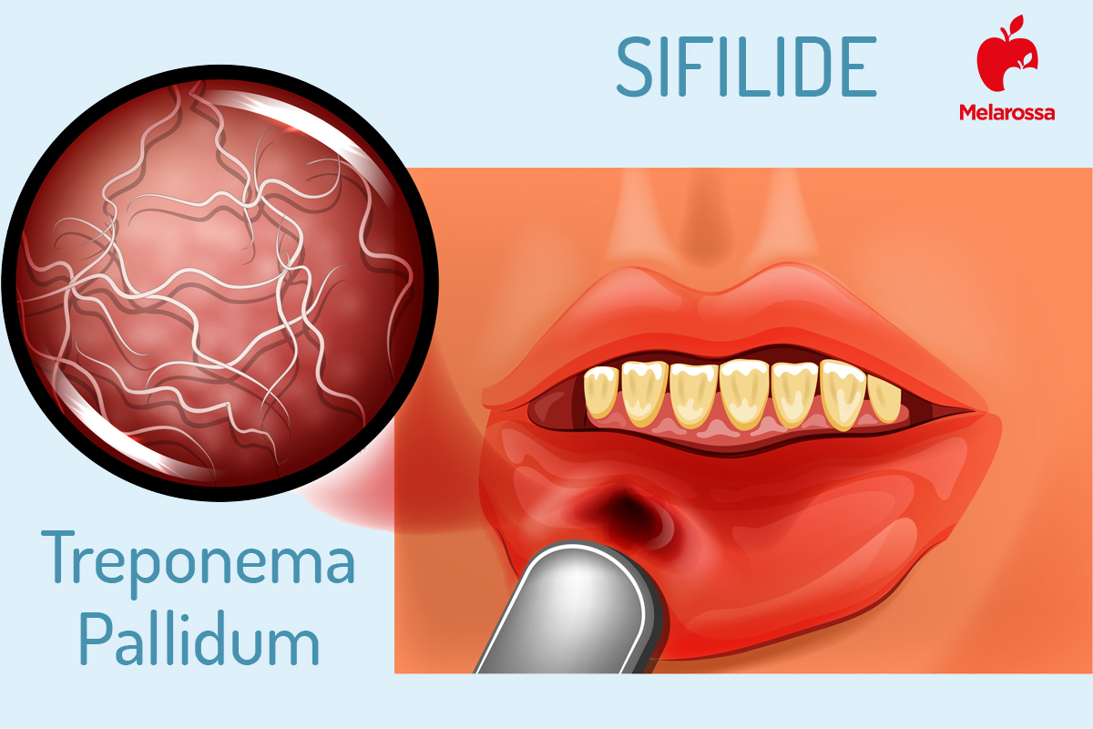 sifilide: sintomi