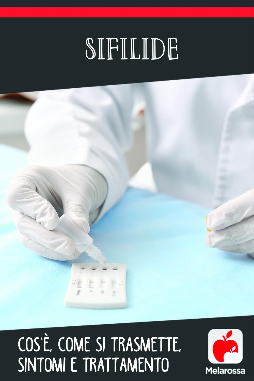 sifilide: cos'è, cause. sintomi e cure