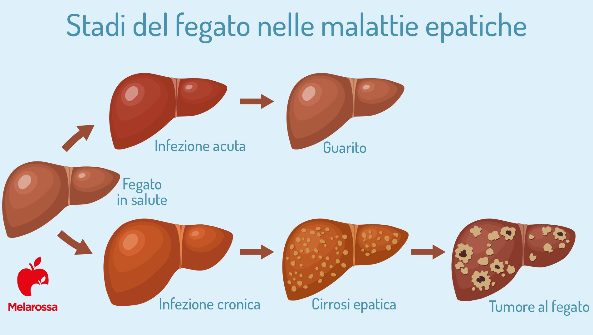 epatite C: fegato