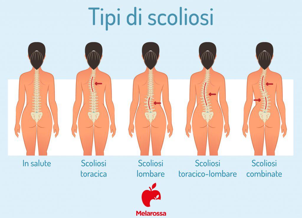 mal di schiena: tipi di scoliosi- INFOGRAFICA