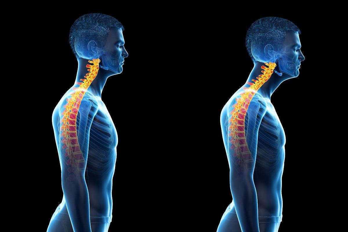 mal di schiena: cause artrosi cervicale