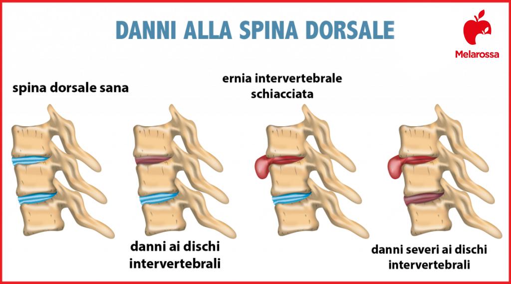 lombalgia: mal di schiena