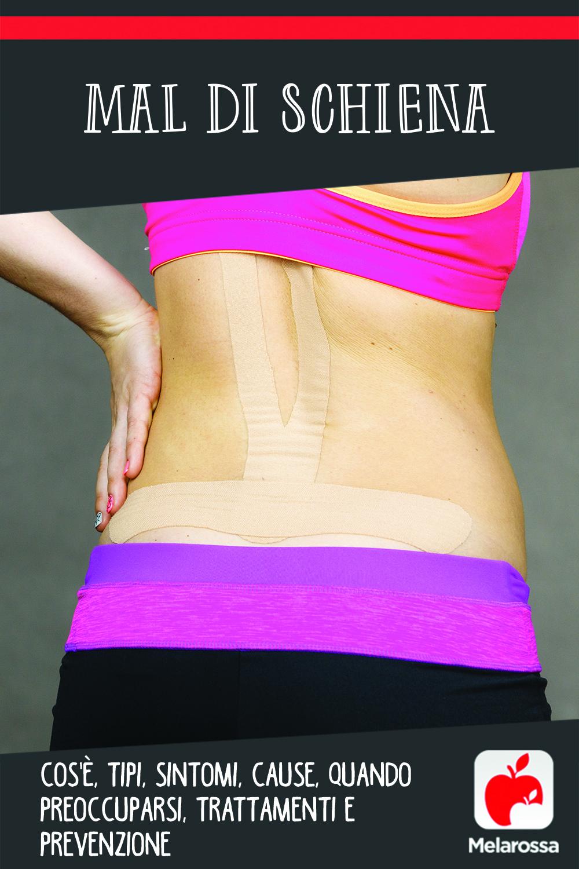 mal di schiena : cos'è, cosa fare, quando preoccuparsi, trattamenti e prevenzione