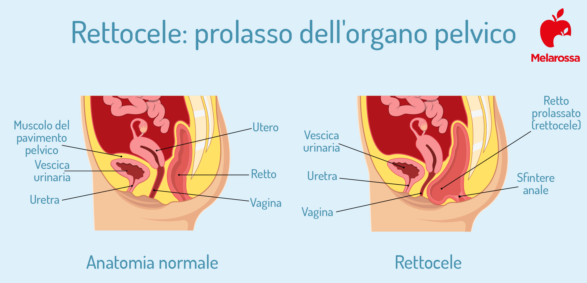 perineo: prolasso  vaginale