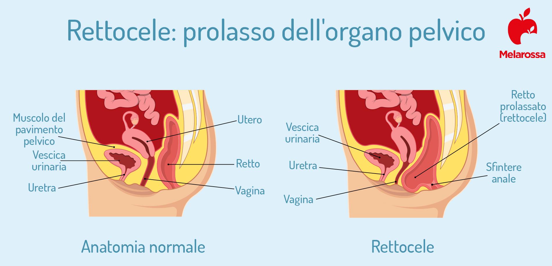 perineo: prolasso  vaginale