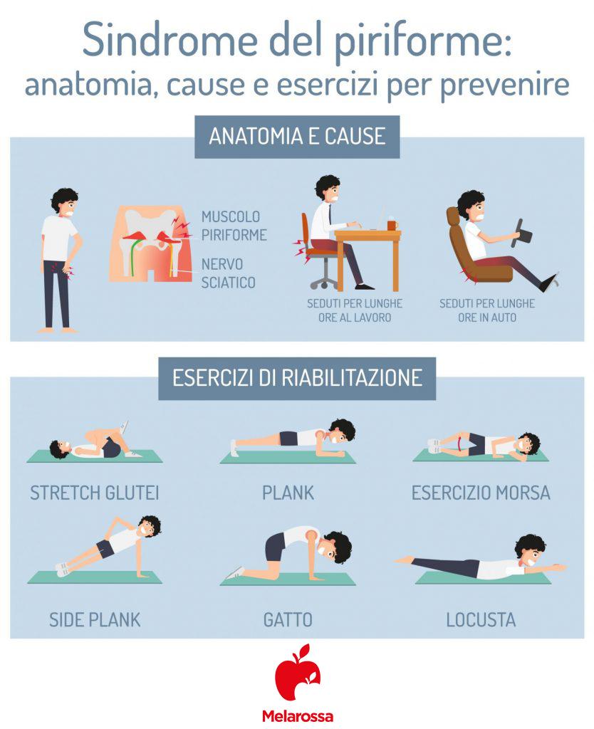 sindrome del piriforme: mal di schiena