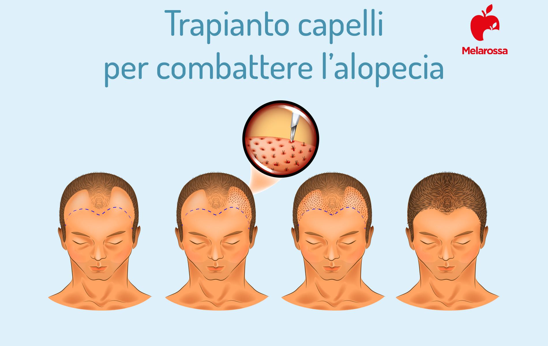 alopecia e trapianti di capelli