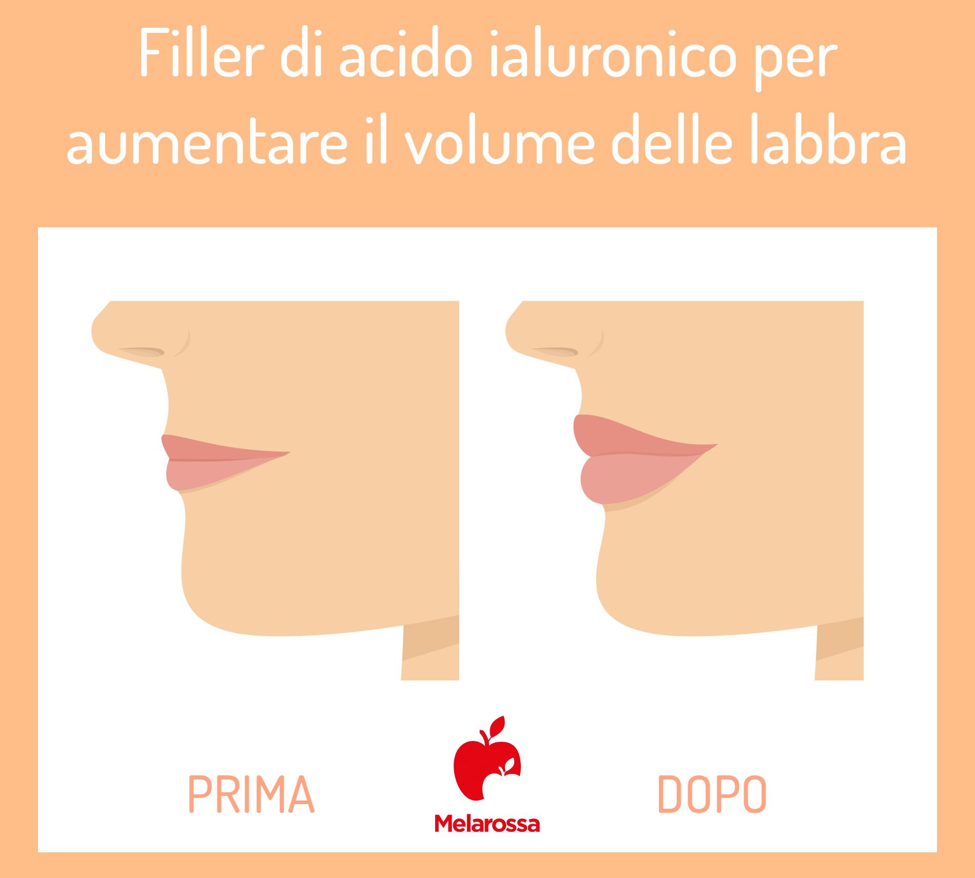 acido ialuronico:  filler per labbra