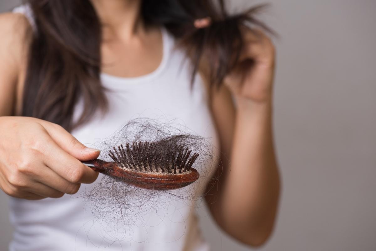 Alopecia: cos'è, cause, sintomi e cure
