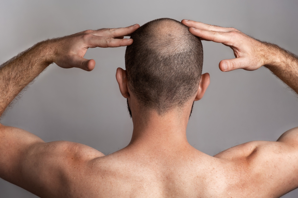 Alopecia: cure